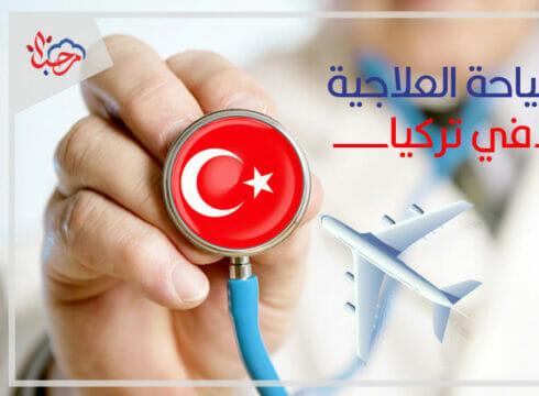 تركيا | منوعات
